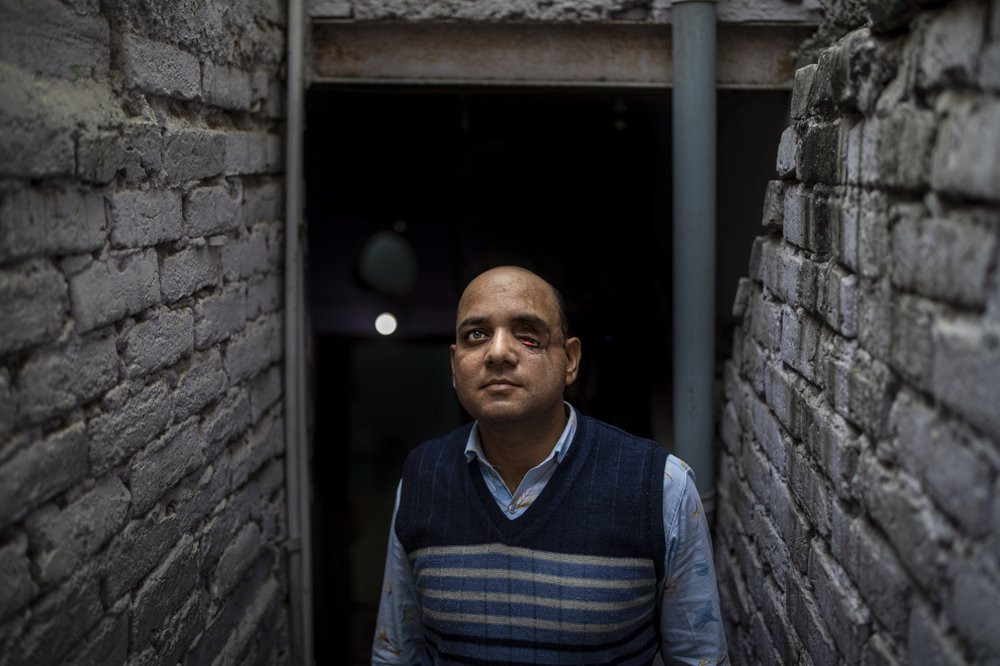 Muhammad Nasir Khan, who was shot by a Hindu mob during the February 2020 communal riots, poses for a photograph inside his home in North Ghonda, one of the worst riot affected neighborhood, in New Delhi, India, Friday, Feb. 19, 2021.